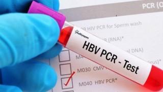 Şanlıurfa'da PCR testi zorunluluğu kaldırıldı